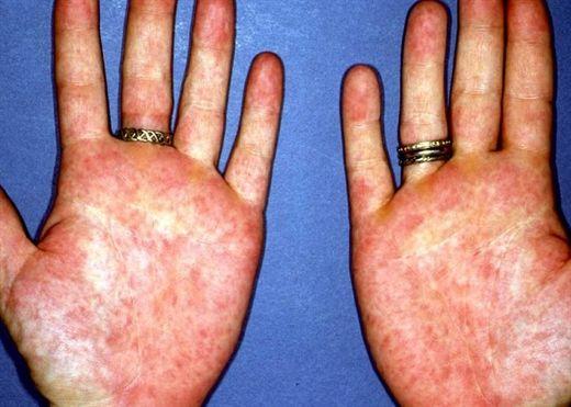 7 dấu hiệu bàn tay cảnh báo bệnh nguy hiểm