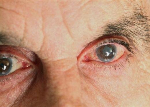 ĐỤC THỦY TINH THỂ, căn bệnh dễ gây mù lòa ở người cao tuổi