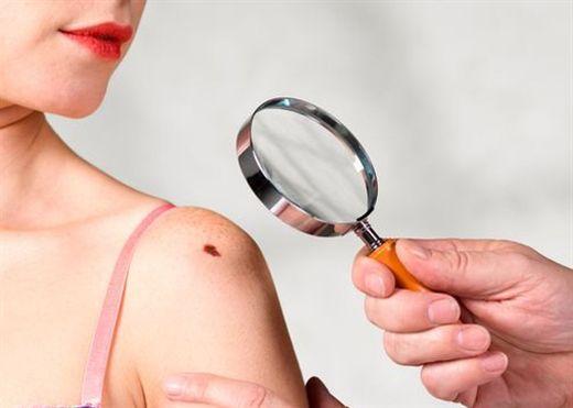 TẨY NỐT RUỒI- nguy hiểm khôn lường, thậm chí gây ung thư da, hoại tử