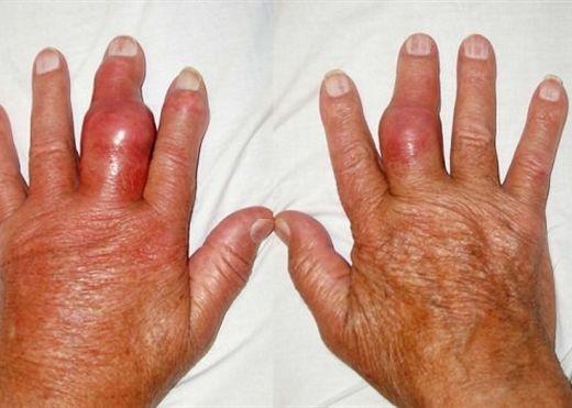 6 loại thực phẩm người bệnh gout không nên đụng vào nếu như không muốn bệnh nặng hơn