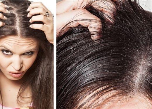 5 loại thực phẩm khiến tóc 'bết' nên hạn chế
