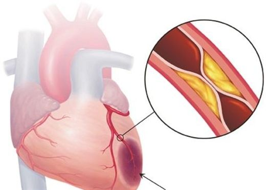 Những thực phẩm hàng đầu giúp giảm nguy cơ tắc nghẽn động mạch