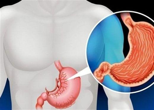 Phát hiện sốc: ung thư dạ dày đang tấn công nhóm nữ giới tuổi đời còn rất trẻ