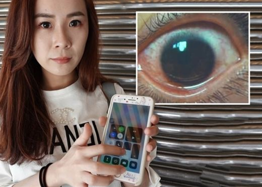 Hot: Cô gái trẻ thủng 500 lỗ ở giác mạc khi sử dụng điện thoại ở độ sáng tối đa