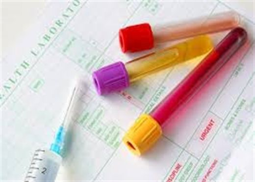 Mùi và màu sắc nước tiểu thông báo những căn bệnh tiềm ẩn trong cơ thể
