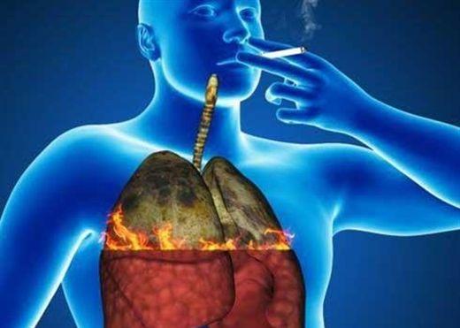 UNG THƯ PHẾ QUẢN – UNG THƯ PHỔI NGUYÊN PHÁT: Nguyên nhân cơ bản là do hút thuốc lá