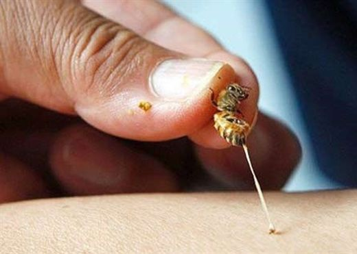 Những phương pháp đơn giản giúp giảm sưng đau, trung hòa nọc độc khi bị ong đốt