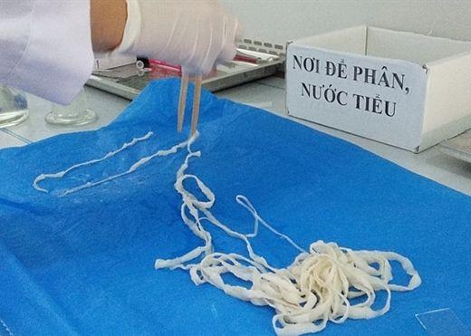 Khiếp đảm sán dây dài 5.2m xổ ra khỏi cơ thể nữ bệnh nhân