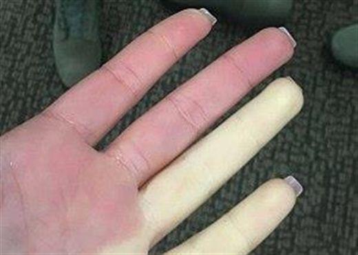 10 nguyên nhân gây tê tay, nếu mắc phải bạn cần đi khám ngay lập tức