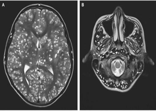 Nhiễm ấu trùng sán lợn trong não, thanh niên Ấn Độ tử vong sau 2 tuần nhập viện