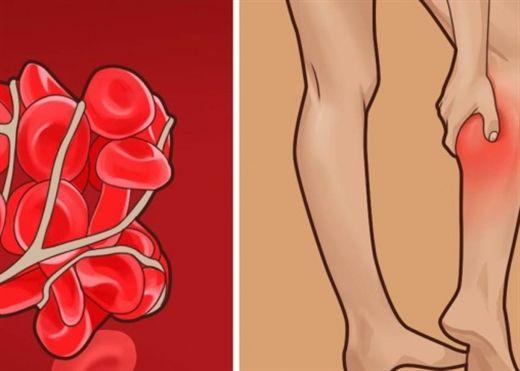 Chuột rút ở chân, hay choáng váng cẩn thận với tình trạng cục máu đông nguy hiểm