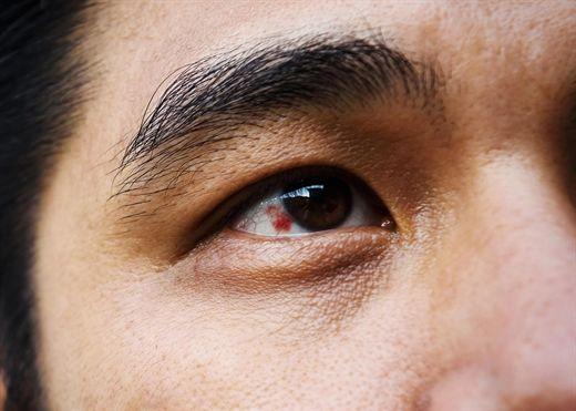 Soi gương thấy vệt đỏ trong mắt là dấu hiệu của bệnh gì?