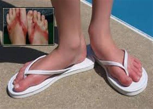 Tác hại của việc đi dép xỏ ngón mà nhiều người chưa biết