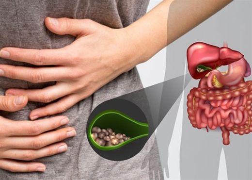 """6 thực phẩm """"vàng"""" ăn thường xuyên giúp ngăn ngừa SỎI MẬT"""