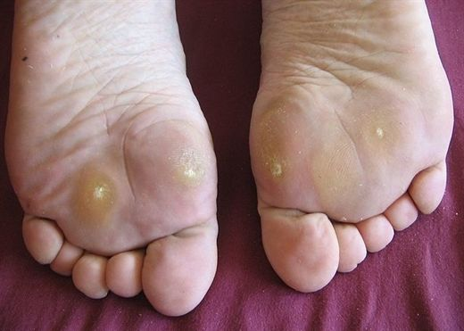 Đánh bay những vết chai tay chân không khó như nhiều người nghĩ