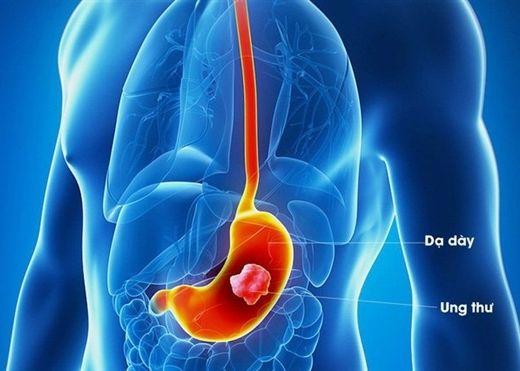 Những thói quen nhiều người mắc phải có thể gây ung thư dạ dày