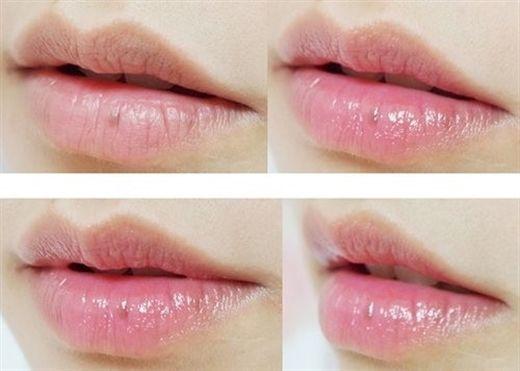Đánh bay thâm môi trong 1 tuần bằng các nguyên liệu tự nhiên