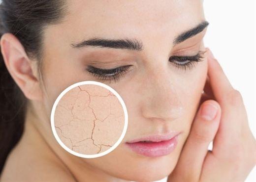 Các dấu hiệu cho thấy làn da của bạn đang thiếu nước nghiêm trọng