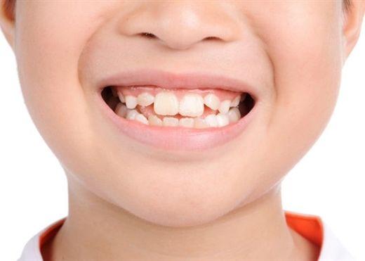 """Những """"thủ phạm"""" khiến răng mọc lệch ở trẻ và cách khắc phục"""