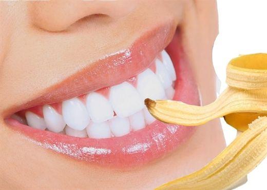Mẹo làm trắng răng bằng vỏ chuối