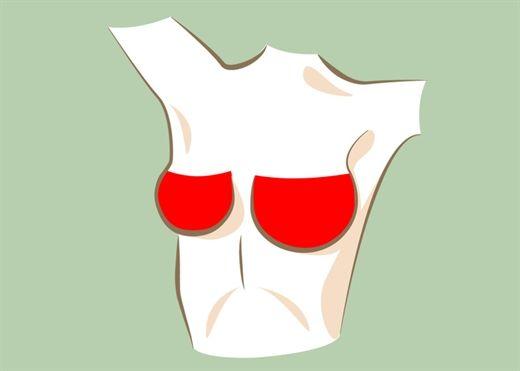 Có phải cứ xuất hiện dấu hiệu bất thường ở ngực đều đáng lo?