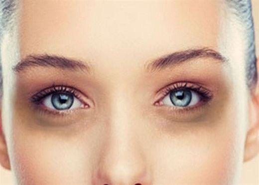Những nguyên nhân gây quầng thâm mắt