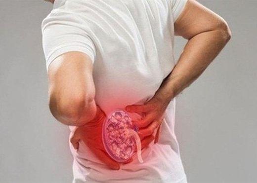 Những biện pháp tự nhiên và đơn giản giúp phòng ngừa bệnh sỏi thận