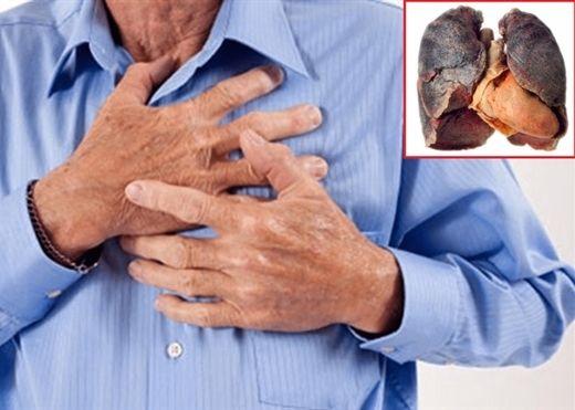 Những thói quen đang dần giết chết phổi của bạn