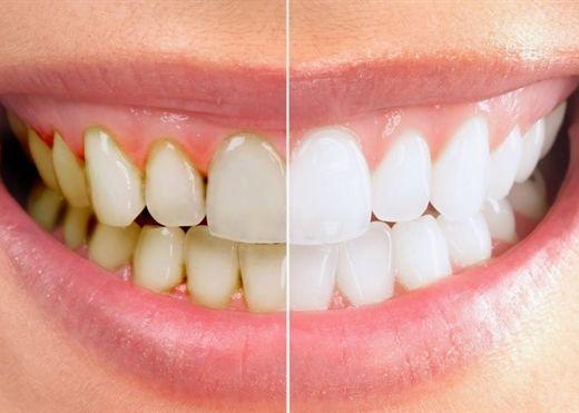 """12 cách """"đánh bay' cao răng hiệu quả tại nhà, ai cũng có thể thực hiện được"""