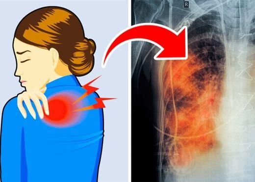 5 dấu hiệu cảnh báo phổi đang xuống cấp: Số 1 hầu như ai cũng bị nhưng đều bỏ qua