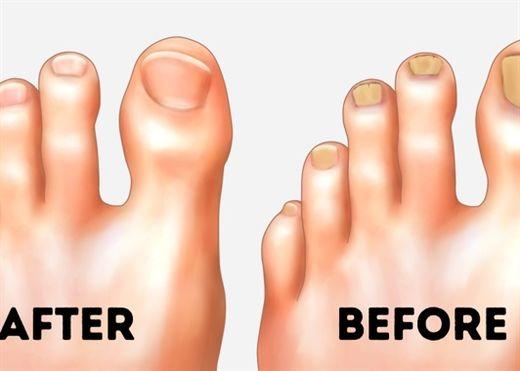 10 mẹo đơn giản giúp chăm sóc chân để chúng luôn trông thật hoàn hảo