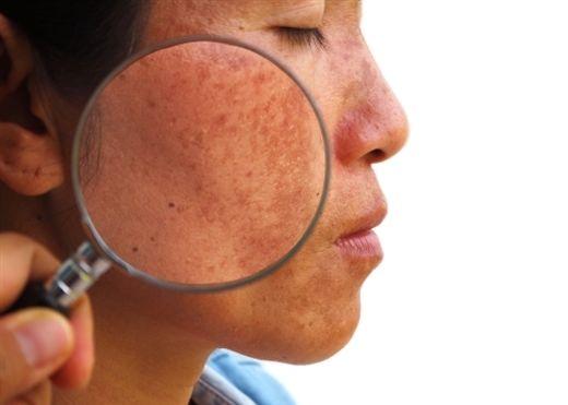 Bí quyết cải thiện làn da không đều màu trong mùa nắng nóng?
