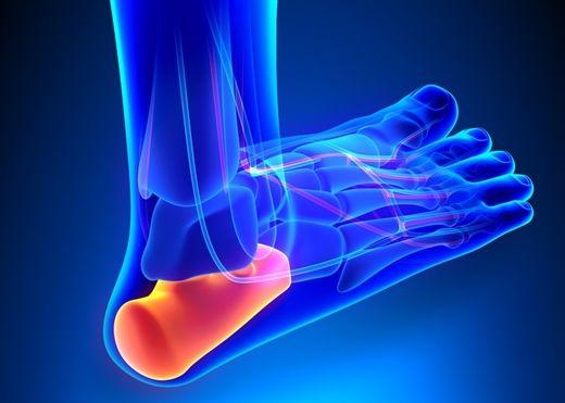 Đau gót chân vào mỗi sáng hoặc khi đi đứng nhiều - Nguyên nhân do đâu và cách giải quyết thế nào?