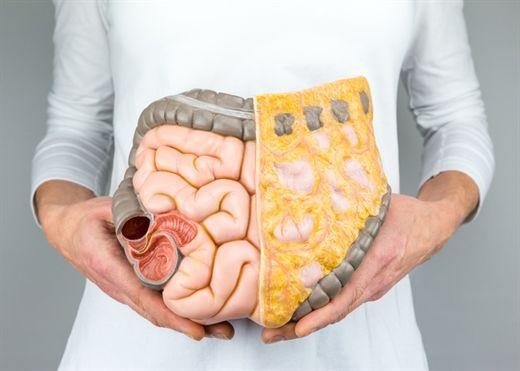 Mỡ nội tạng là gì và làm cách nào để giảm mỡ nội tạng