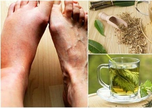 5 loại trà thảo dược tự nhiên giúp giảm hiệu quả axit uric trong máu