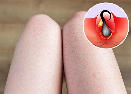 Bạn sẽ không còn phải khổ sở với tình trạng mụn đầu đen và lỗ chân lông to ở chân nếu hiểu rõ những điều này