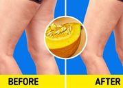 Những loại thực phẩm giúp chống lại chứng da dẻ sần sùi hiệu quả
