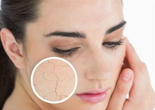 Thời tiết trở lạnh khiến da bạn bị khô và đây là cách khắc phục hiệu quả