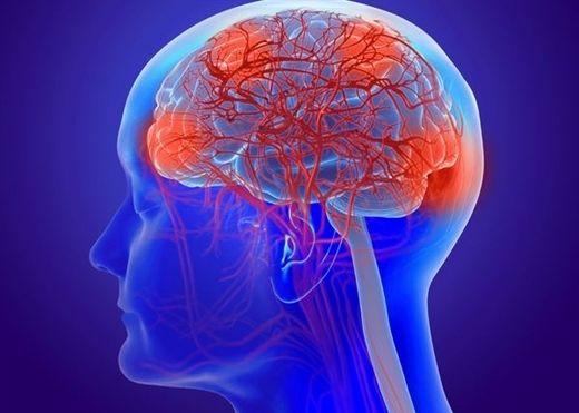 Vì sao rét đậm rét hại làm tăng nguy cơ đột quỵ?