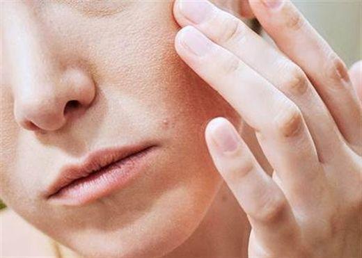 Điều trị da mặt khô, rát đỏ vào mùa đông với các nguyên liệu tự nhiên