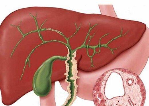 Người mắc bệnh lý về gan mật cần có chế độ dinh dưỡng như thế nào để nhanh hồi phục?