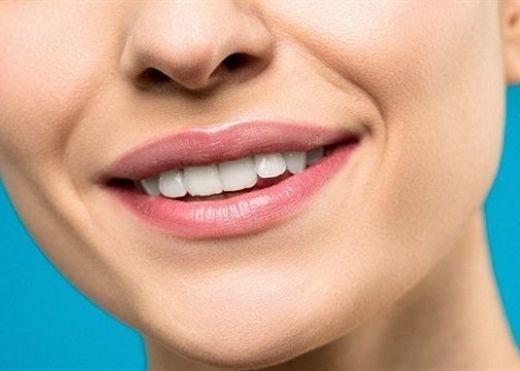 5 cách hiệu quả tại nhà để loại bỏ vết thâm quanh miệng