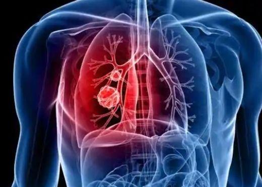 Ung thư phổi: Các dấu hiệu và triệu chứng cảnh báo tuyệt đối không nên bỏ qua