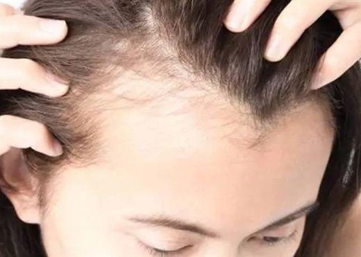 5 loại mặt nạ cho tóc giúp làm dịu da đầu và cải thiện tóc mỏng
