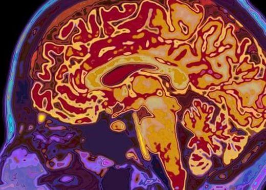 Bệnh nhân từng mắc Covid-19 có nguy cơ mắc bệnh tâm thần và rối loạn thần kinh
