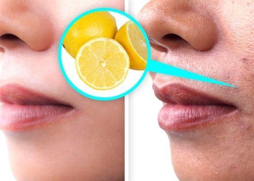 Nguyên nhân gây ra đốm đen trên mặt, rất quen thuộc nhưng chúng ta thường không để ý