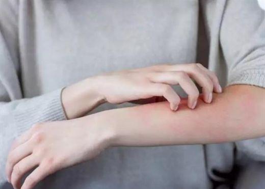Những tác dụng phụ kỳ lạ nhất của vaccine COVID-19: Sưng môi, sưng hạch và cánh tay COVID