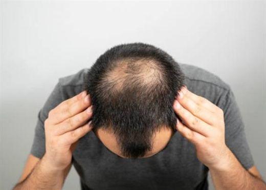 7 cách dễ dàng và không tốn kém giúp ngăn ngừa tình trạng rụng tóc và kích thích mọc tóc cho cánh mày râu