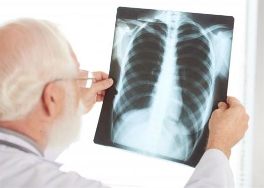 Các dấu hiệu chắc chắn bạn đang bị ung thư phổi