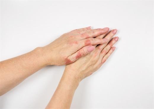 7 cách phòng tránh mắc bệnh Eczema vào mùa hè